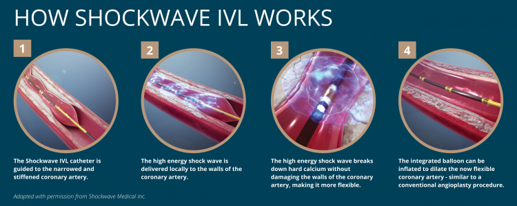 how does shockwave ivl work